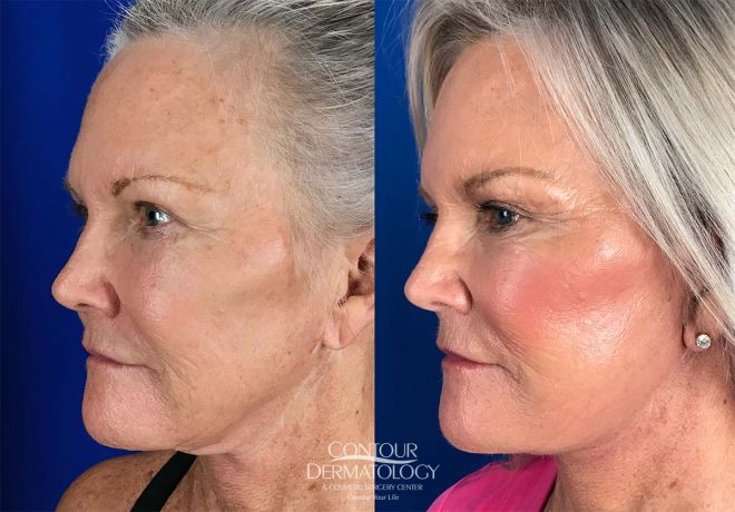Mini Facelift, 1 month after