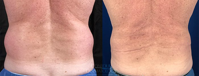 Liposuction and VelaShape on Flanks