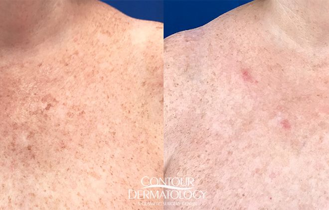 IPL for chest, 2 weeks post treatment
