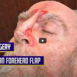 Dr. Jochen performs a Paramedian Forehead Flap, also called interpolated flap, to close a defect on the tip of the nose after a Mohs Surgery, Part 2.