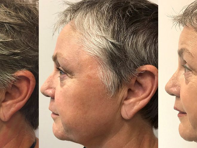 20180208-Triniti-Face-5_Treatments-Left-Before-After-lg-1