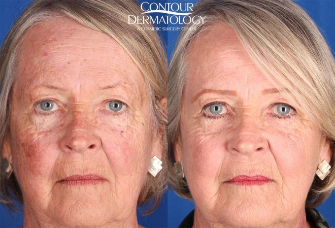 IPL and Excel V laser treatments, 1 year after