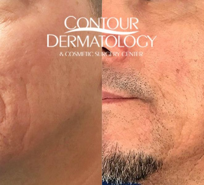 Acne Scar Treatment with Fraxel Laser, Sublative, Subscision and Filler.