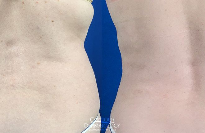 Liposculpture Flanks, 1 Month After, 52 Year Old Female