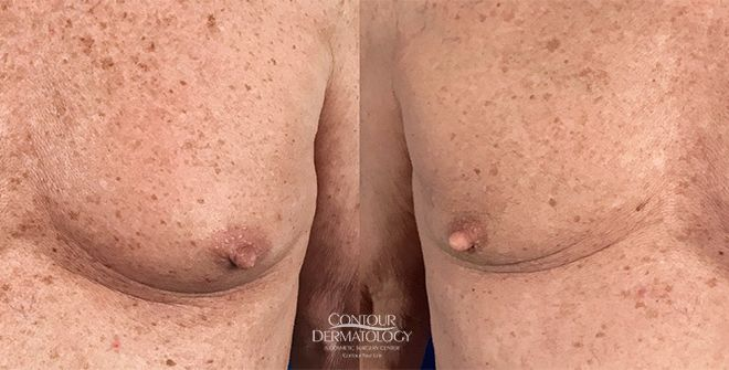 4 months after 1 CoolSculpting treatment to Chest
