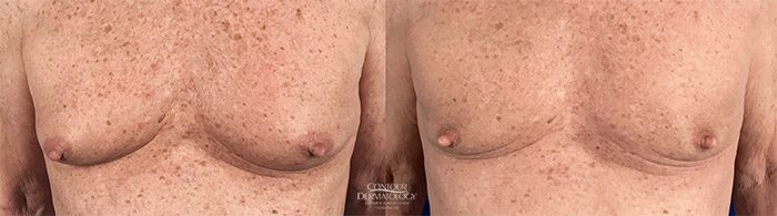 CoolSculpting to Chest