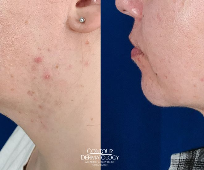 Chin and neck liposculpture, 32 year old female, 3 months after