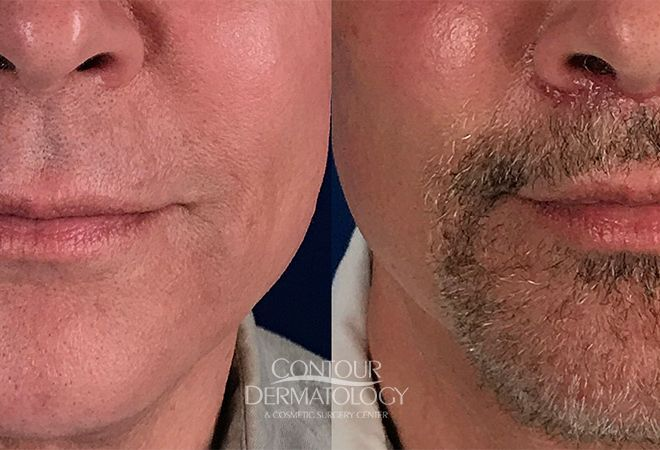 Lip Lift, 65 Year Old Male, 1 Month After