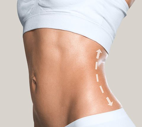 Liposuction removes fat cells permanently. With weight gain, new fat will generally not return to treated areas.