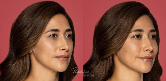 Restylane Contour Before and After Photo