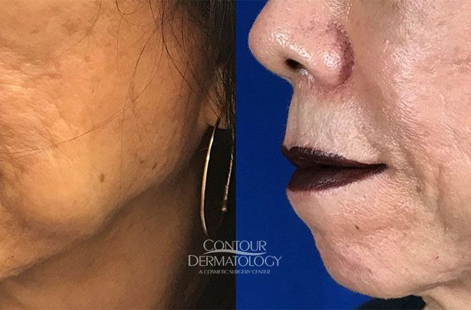 Buccal Fat Reduction, Kybella, 5 vials to jowls, 6 months after treatment, 67 year old female