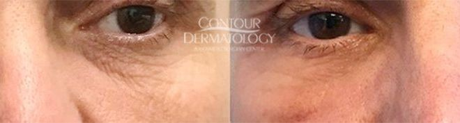 CO2 Laser Resurfacing - 50 yr old male - 3 weeks after