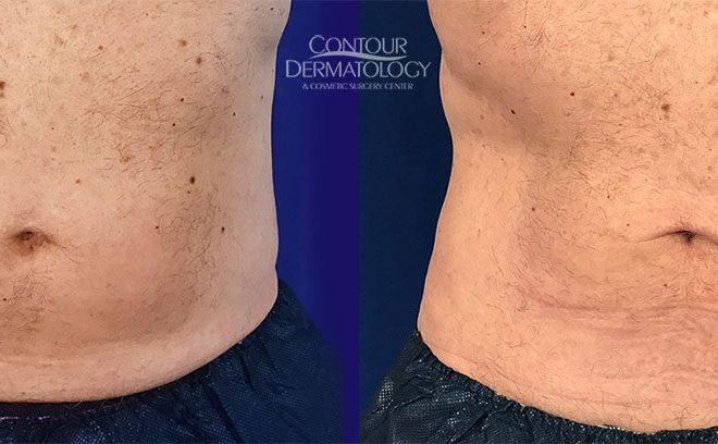 71 year old male, 2 CoolSculpting treatment to lower abdomen
