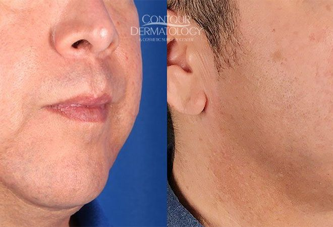 Kybella for jowls, 3 months after. 51 yr old male.