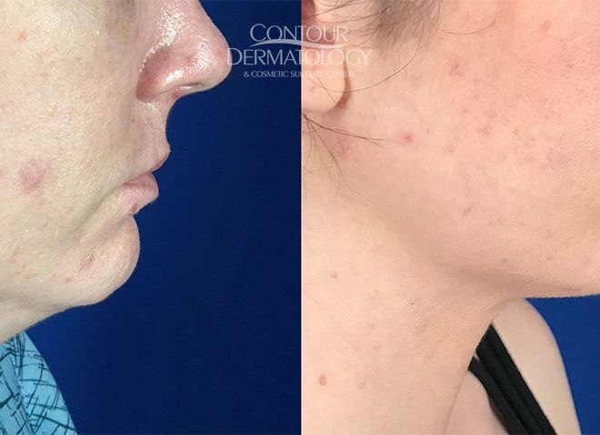 Chin Liposculpture, 1 month after, 33 year old female