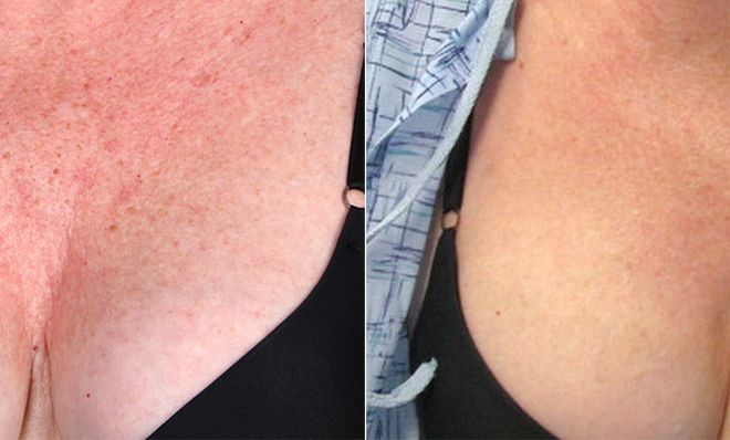Triniti-Chest-Before-After-lg