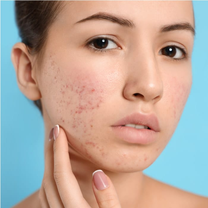 Contour Dermatology and Timothy Jochen, MD help people overcome their acne.