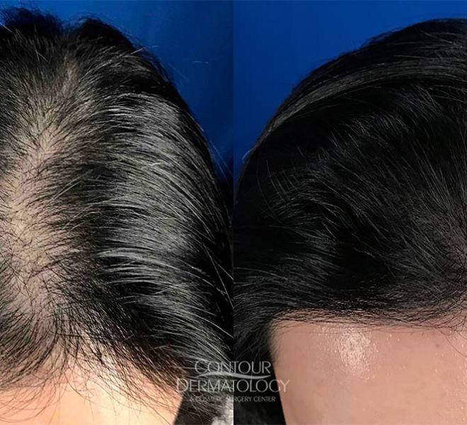 Hair Transplant Before and After – Female – 2200 Grafts