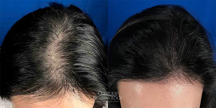 Hair Transplant Before and After - Female
