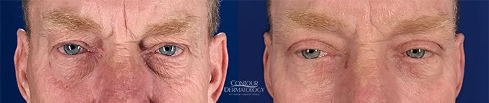 Upper & Lower Blepharoplasty with CO2 around eyes, 1 month after
