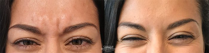 Botox for Glabella (between the eyes)