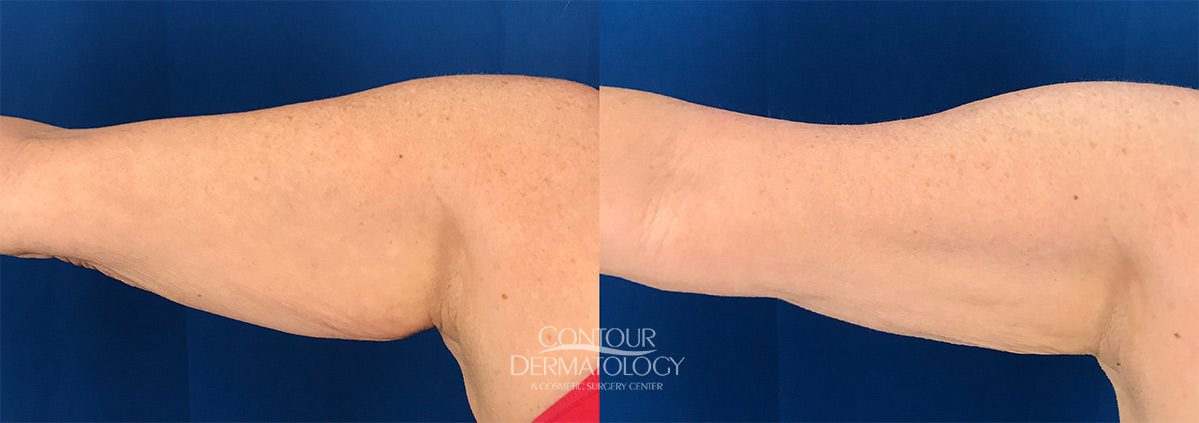 CoolSculpting for Arms, 2 treatments