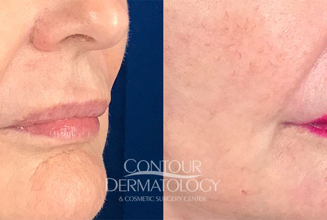 Lip Lift, 60 Year Old Female, 3 Weeks After