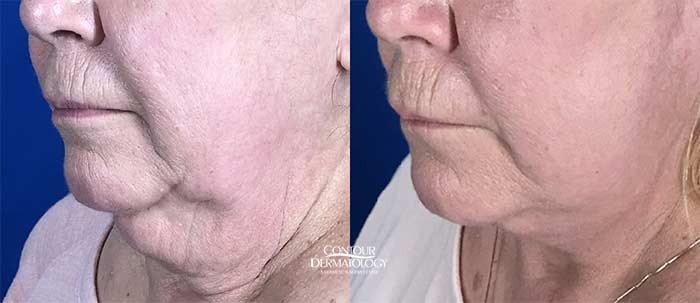 MIni Facelift and Chin Lipo Combo