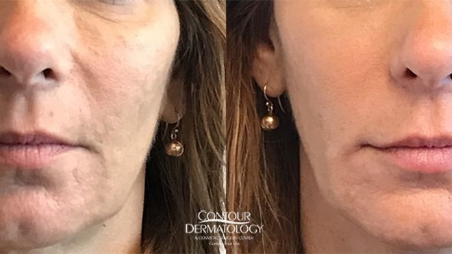 1 vial of Sculptra on the Cheeks