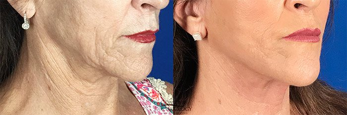 Mini Facelift, 61 years old, Before and After