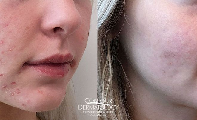Accutane, Before & After