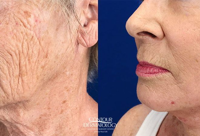 Mini Facelift with Fractional CO2 laser, 68 years old, After 1 month