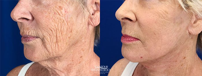 Mini Facelift with Fractional CO2 laser, 68 years old, Before and After