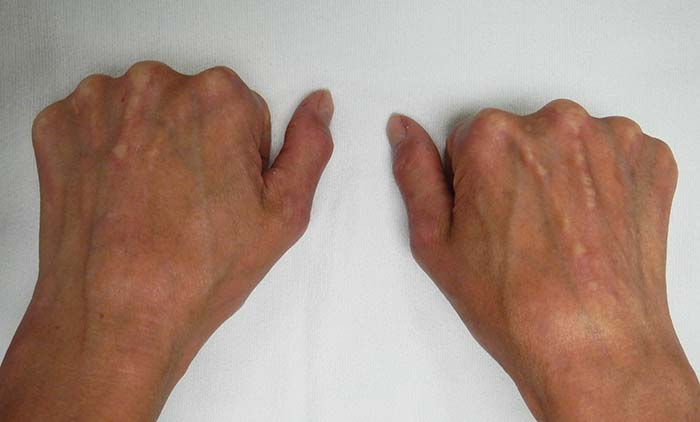 CREST limited scleroderma symptoms on the hands