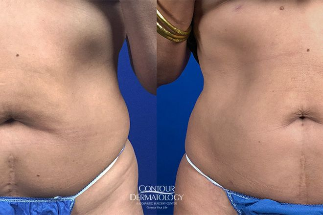 Liposuction for Abdomen, Before and After