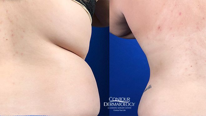 Liposuction for Abdomen and Flanks, Before and After