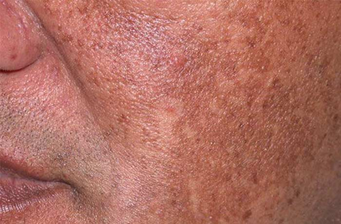 Hyperpigmentation on the face