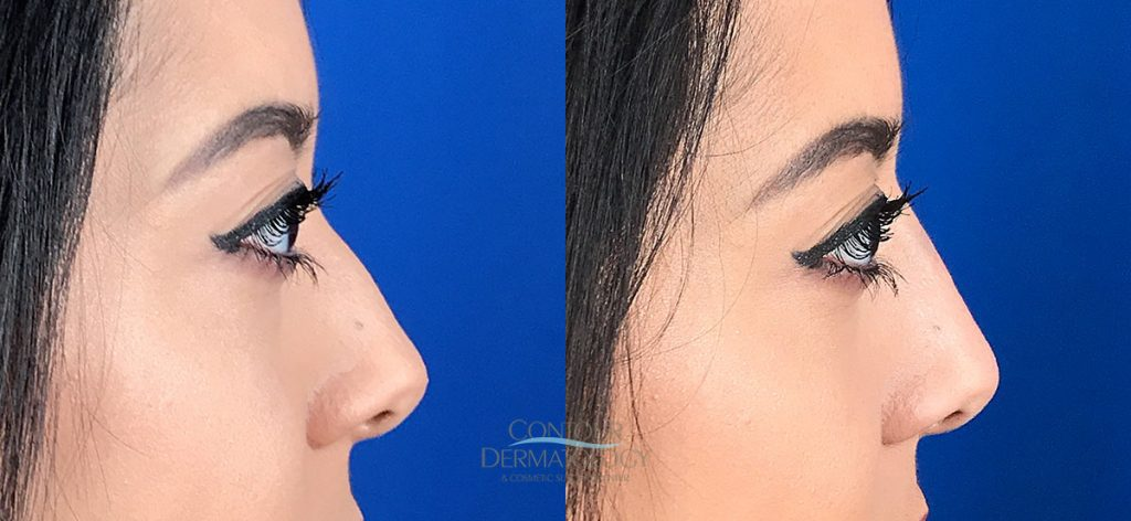 Liquid Nose FIller Before and Aftre