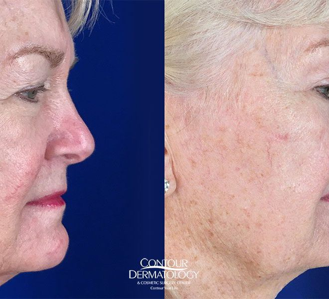 Full Face Fractional CO2, Side View, Before and After