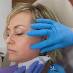 Our patient is in for a jaw enhancement usingfacial fillersbecause gravity does its number as you age and once firm jawlines and chiseled chins give way to jowl laxity.