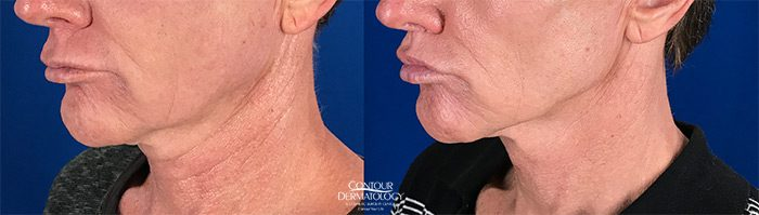 Profound for Lower Face and Upper Neck, Before and After