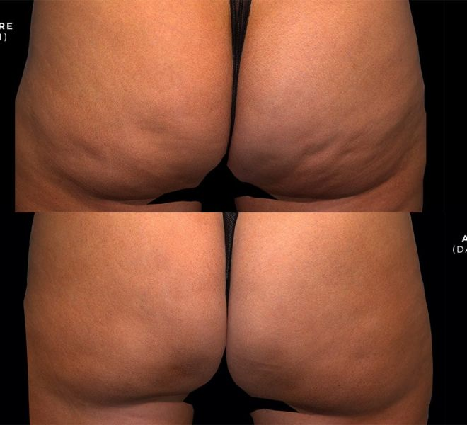 QWO before and after photos, After is 71 days after one treatment.