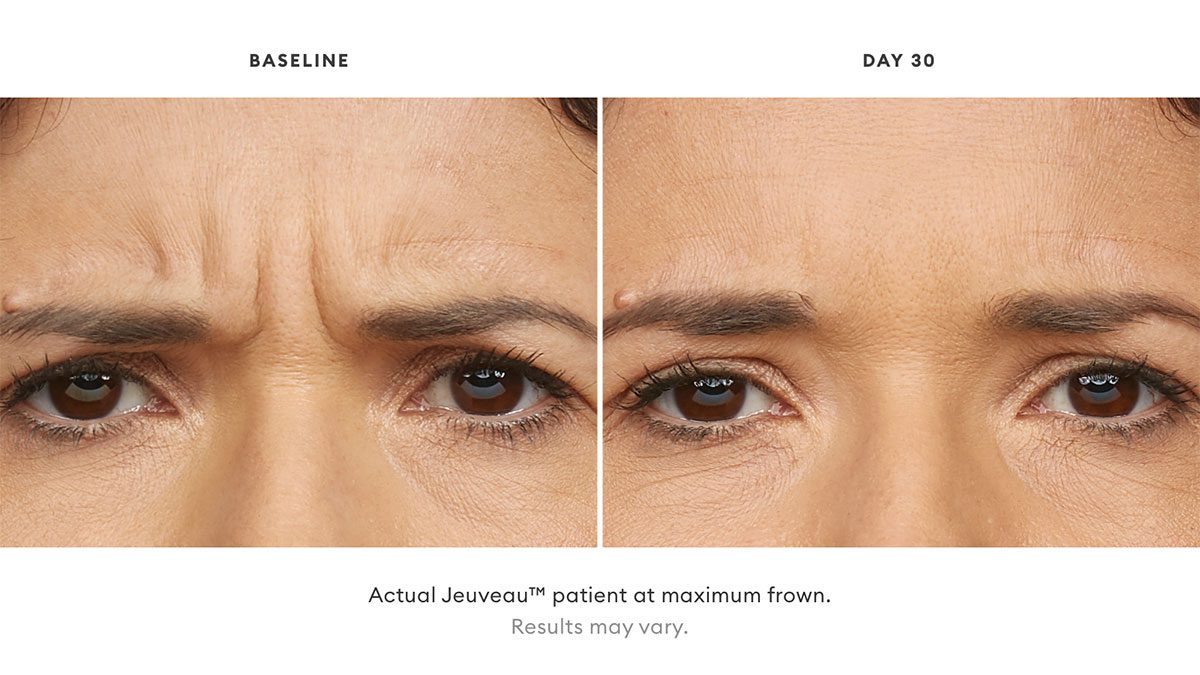 Jeuveau Before and After Photo