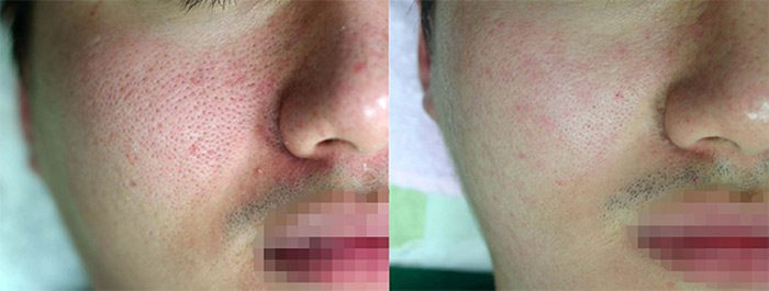 Lutronic Action II, Large Pores, Before & After