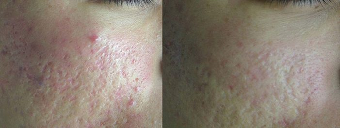 Lutronic Action II, Acne Scars, Before & After