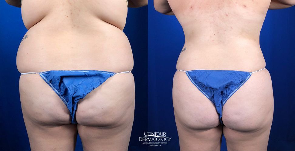 Liposuction for the Abdomen and Flanks with Fat Transfer to the Buttocks