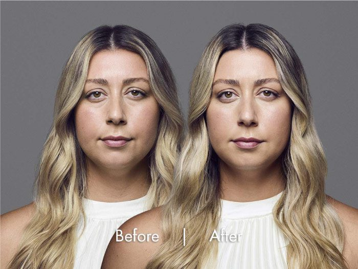 Revance RHA facial filler before and after