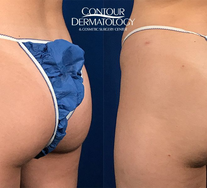 Brazilian Butt Lift – Fat Transfer to the Buttocks – Left Side View