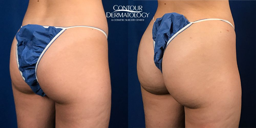 Brazilian Butt Lift – Fat Transfer to the Buttocks – Right Side View