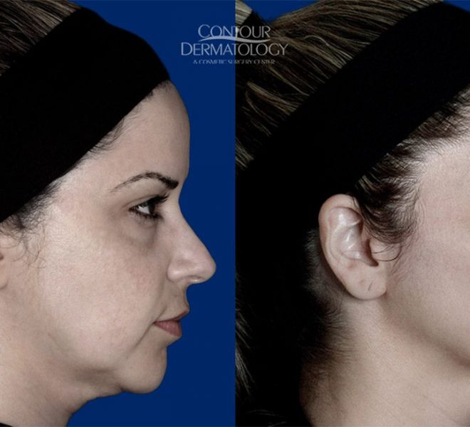 Restylane Defyne for chin large